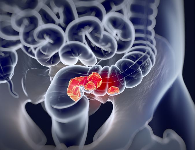 03_Colorectal_Cancer-01-small.jpg